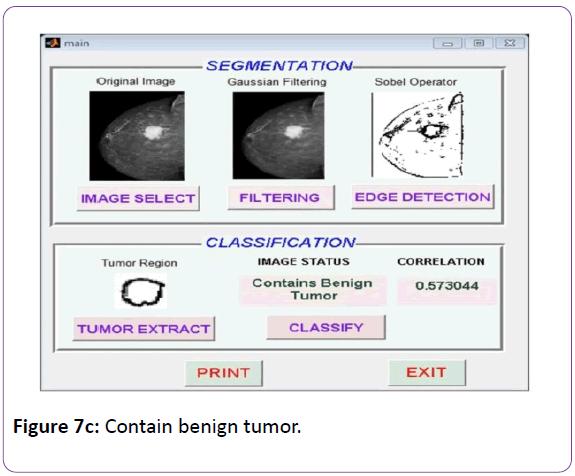 biomedical-sciences-Contain-benign-tumor